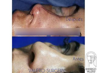 Rinoplastia - Dr. Rodrigo Valero Jarillo