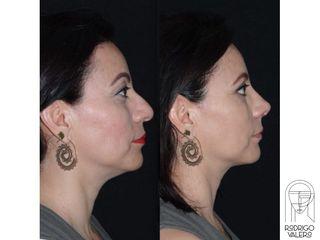Rinoplastia + Blefaroplastia - Dr. Rodrigo Valero Jarillo