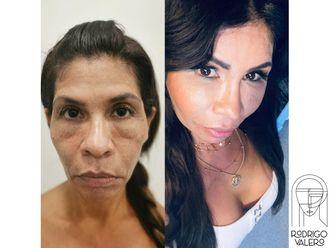 Rejuvenecimiento facial-740431
