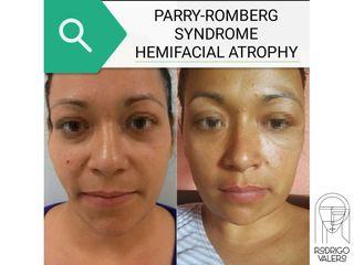 Lipoinyección facial - Dr. Rodrigo Valero Jarillo