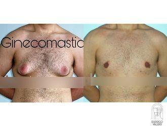 Cirugía ginecomastia-740439