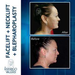 Facelift - Dr. Rodrigo Valero Jarillo