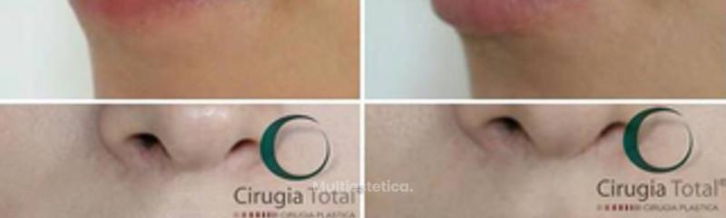 Antes y despues de aumento de labios con acido hialuronico