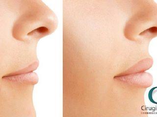 Antes y después de aumento de labios con acido hialuronico