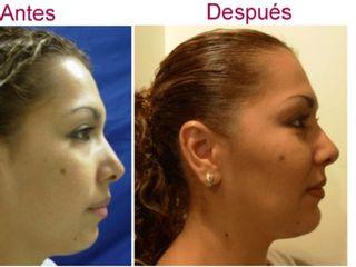 Antes y despues de aumento de menton