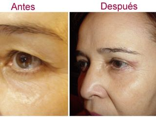 Antes y después de elevación de ceja