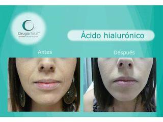 Ácido hialurónico - Dr. Rafael Arenas