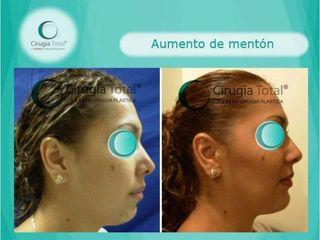 Mentoplastia - Dr. Rafael Arenas