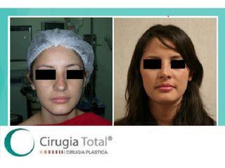 Aumento de labios - Dr. Rafael Arenas