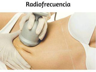 Radiofrencuencia