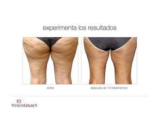 Tratamientos anticelulíticos - 636115