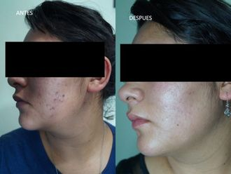 Tratamiento antiacné-610854