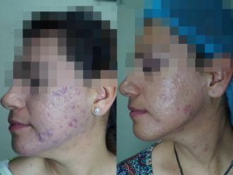Tratamiento antiacné-615807