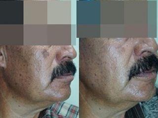Hiperpigmentación y rejuvenecimiento facial