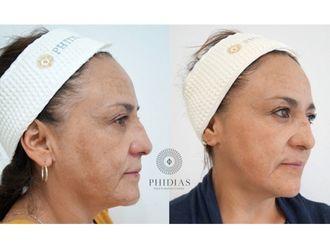 Rejuvenecimiento facial - 643011