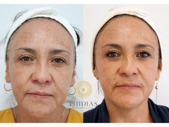 Rejuvenecimiento facial - 643012