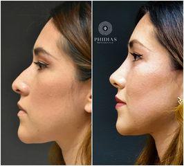PHIDIAS Facial & Aesthetics Center - Rinoplastía