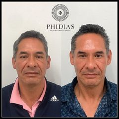 PHIDIAS Facial & Aesthetics Center - Rejuvenecimiento facial