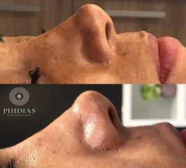 PHIDIAS Facial & Aesthetics Center - HYDRAFACIAL
