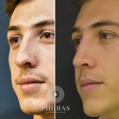 PHIDIAS Facial & Aesthetics Center - Rinoplastia