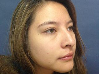Rinoplastia paciente 2 antes
