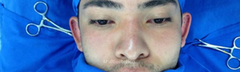 Otoplastia Imagen 1 pre cirugía