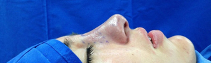 Rinoplastia imagen 2 Post cirugía