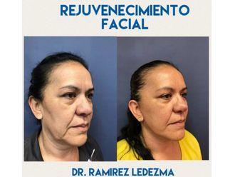 Rejuvenecimiento facial-625397