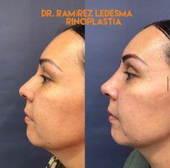 Rinoplastia - Dr. Sergio Guillermo Ramírez Ledesma