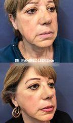 Aumento de labios - Dr. Sergio Guillermo Ramírez Ledesma