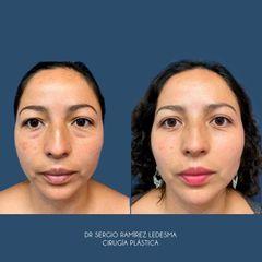 Blefaroplastia - Dr. Sergio Guillermo Ramírez Ledesma