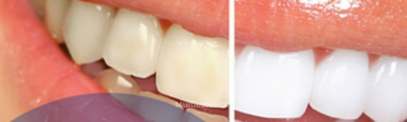 Antes y despues de blanqueamiento dental