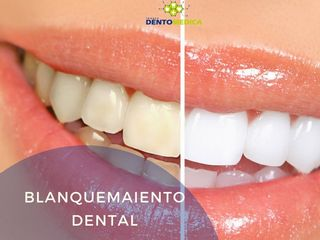 Antes y despues de blanqueamiento dental