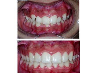 Ortodoncia - 501243