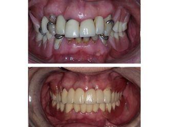 Implantes Dentales-501247