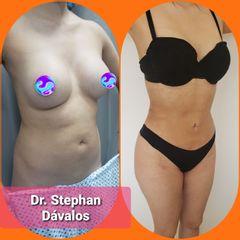 Liposucción - Dr. Stephan Dávalos