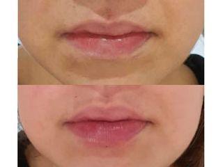 Aumento de labios, con Ácido Hialurónico