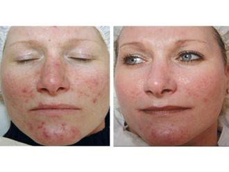 Dermatología-498015
