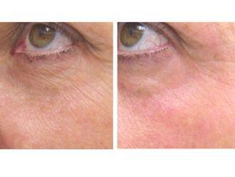 Tratamientos faciales-498019