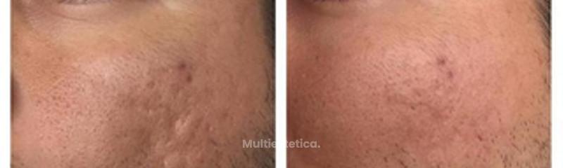 Antes y despues de eliminacion de cicatrices de acne