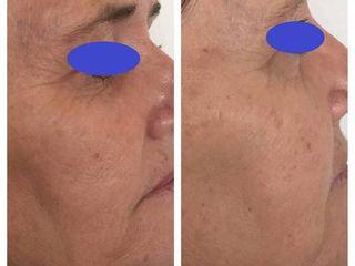 Antes y después de tratamiento de rejuvenecimiento facial