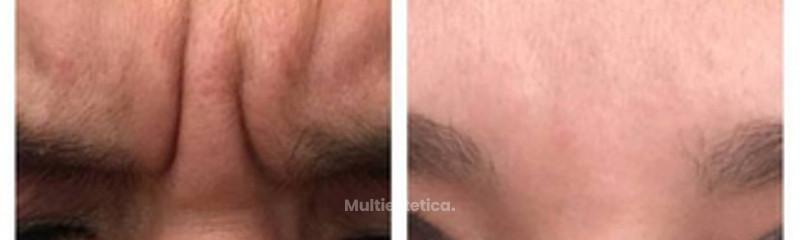 Antes y despues de botox