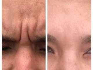 Antes y después de bótox