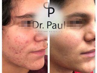 Antes y después de tratamiento para Acné
