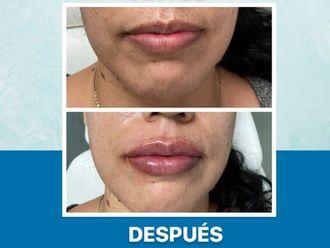 Aumento de labios-650770
