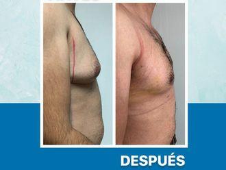 Cirugía ginecomastia-650771