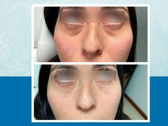 Rejuvenecimiento facial-650776