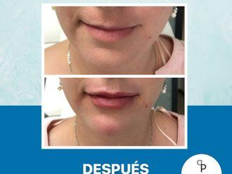 Aumento de labios-650801