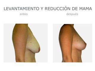Levantamiento y reducción mama