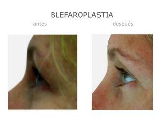 Blefaroplastia-640091